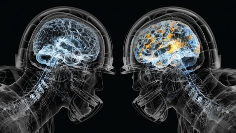 Frequent Concussions Spur New Rules