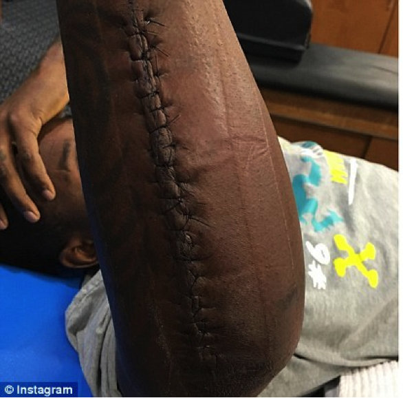Thomas Davis played in the Superbowl with this arm injury.