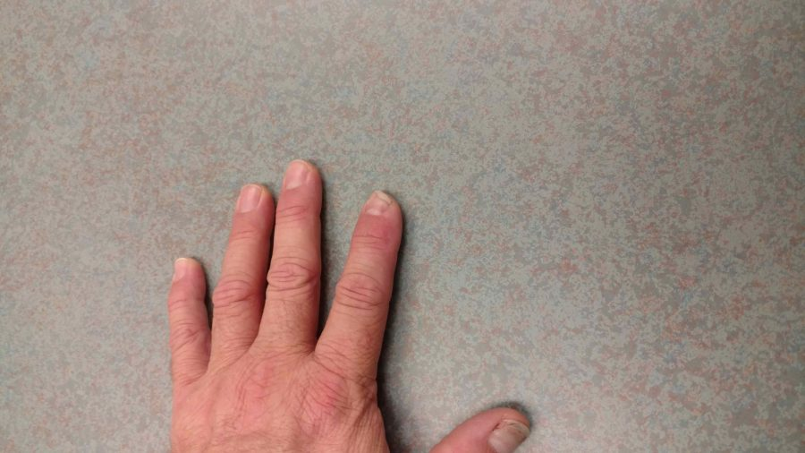Vice Principal Dr. Wayne Foley cut off the tip of his pointer finger this summer, but it grew back because of a cutting-edge stem cell treatment.